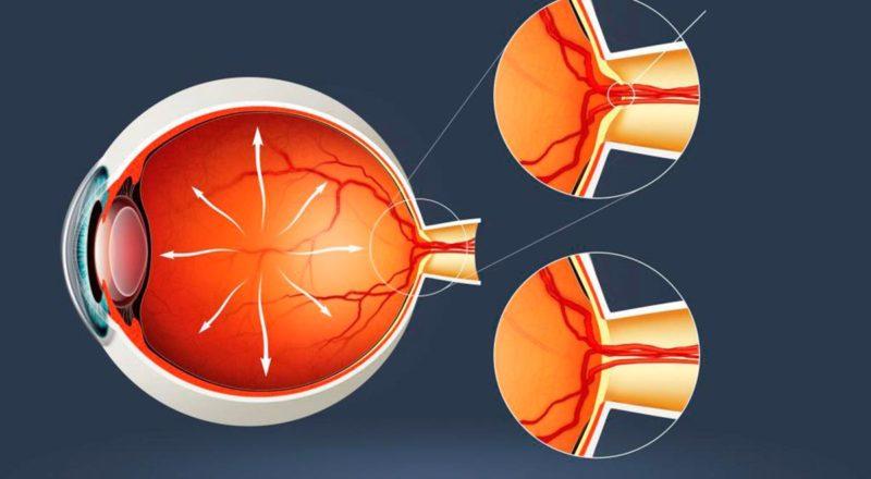 Вторичная офтальмогипертензия